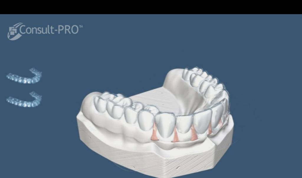 Ortodoncia removible tratamiento con bandejas