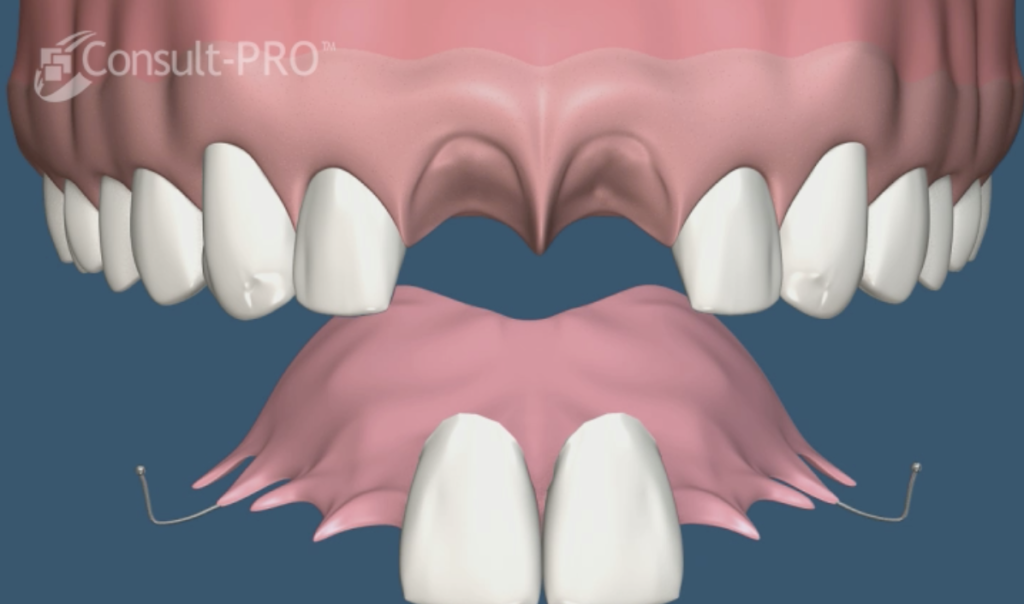 implante anterior procedimiento en 2 pasos